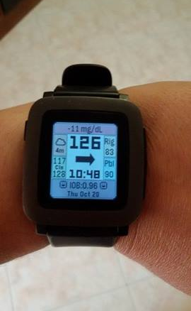pebble_cgm_in_the_cloud