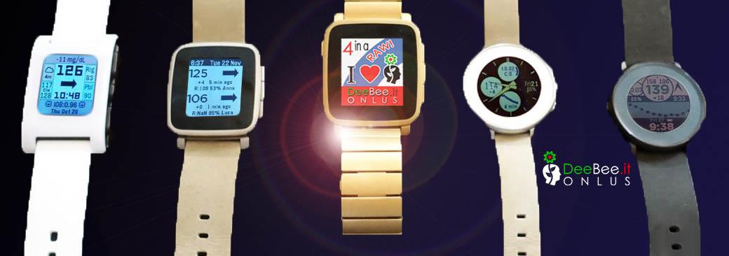 Smartwatch e Nightscout: a ognuno il suo quadrante