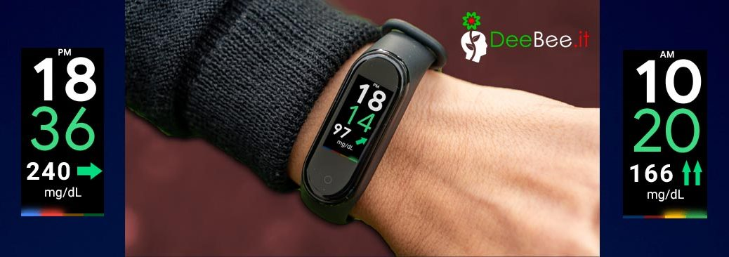 Come visualizzare la glicemia su Xiaomi Mi Smart Band 4 e 5